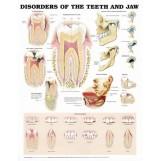 Plakat - Anomalie zębowe