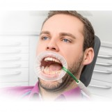 Optragate - retractor and...