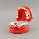 ZYR3005 - orthodontic model...